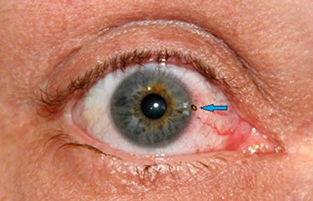 Das Weiße Im Auge Ist Rot