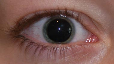 Vergrößerte pupillen